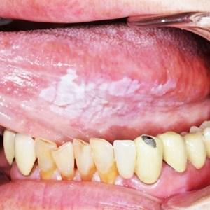 治ら ない 口内炎